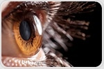 Study can help determine which diabetic individuals can donate corneas for keratoplasty