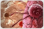 Breast cancer survivors have higher risk of new cancer diagnosis compared to healthy individuals