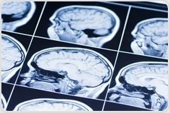 Pioneering neural recordings lay the groundwork for personalized Parkinson's treatments