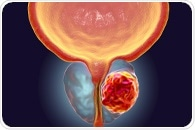 Study: A subset of patients with localized prostate cancer may benefit from immunotherapies