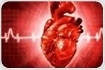 AI-powered tool could accelerate the diagnosis of cardiovascular diseases
