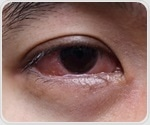 Symptoms and Diagnosis of Eye Allergies