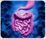 UT Southwestern scientists discover gene that protects gut from IBD