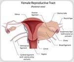 Oophorectomy for Ovarian Cancer