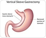What does Sleeve Gastrectomy Involve?