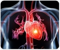 Treating clogged arteries after heart attack improves outcomes, helps avoid subsequent procedures