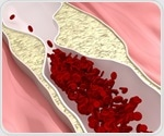 Research shows pNaKtide can attenuate development of NAFLD and atherosclerosis