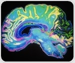 New study shows how the brain looks at the world in 3D