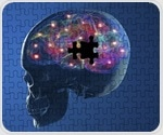 Research findings could help understand how Parkinson's develops on molecular level