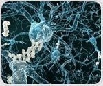 Vascular risk factors increase risk of Alzheimer's disease in late-life, study reveals
