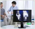 Study finds higher rate of metal sensitization in women after joint replacement