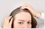 Study findings could help identify treatments for balding and hair graying