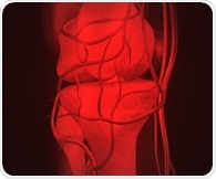 Noisy knees linked to increased risk of developing knee osteoarthritis