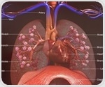 Lung microbiome