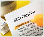 Melanoma could affect anyone regardless of skin color