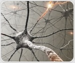 New approaches to early detection of Parkinson's disease on the horizon
