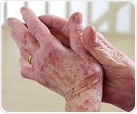Finnish researchers find accumulation of gene mutations in some patients with rheumatoid arthritis