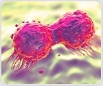 Faulty BRCA genes and their linkage to breast and ovarian cancer: Study