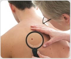 Mayo Clinic study: Patients with Parkinson's have higher risk of melanoma and vice versa