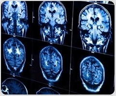 Uncontrolled brain activity may lead to memory and attentional impairments, review suggests