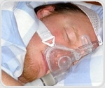 Computer analysis of oxygen levels overnight may be easy, reliable way to detect pediatric sleep apnea
