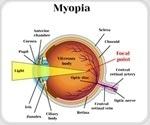 Genetics of Eyesight