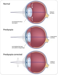 Presbyopia Complications