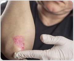 New review examines link between psoriasis and psychiatric illnesses