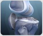 Slipped Capital Femoral Epiphysis (SCFE) Diagnosis