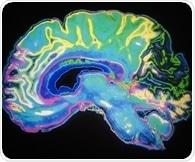 Study examines if widespread pain originates in the brain