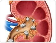 Kidney Stone Diagnosis