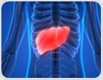 TIPS Procedure (Transjugular Intrahepatic Porto-systemic Shunt)